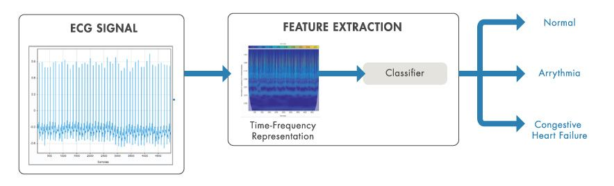 Time-frequency analysis used to extract features from ECG signals for classification.