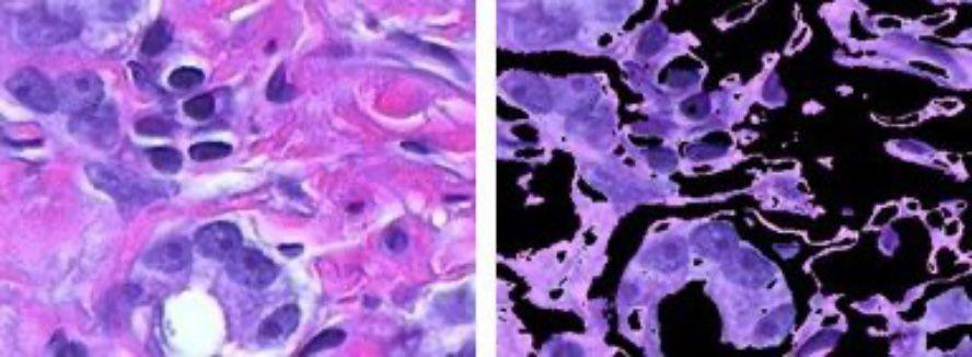 Color-based image segmentation using k-means clustering.