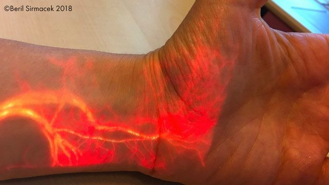 Real-time augmented reality projection of blood flow.